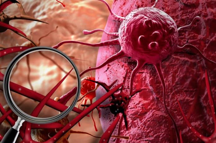 Kanser Hücresinin Sırrı Çözüldü. Hücre Genetiğine Yönelik Tedaviler