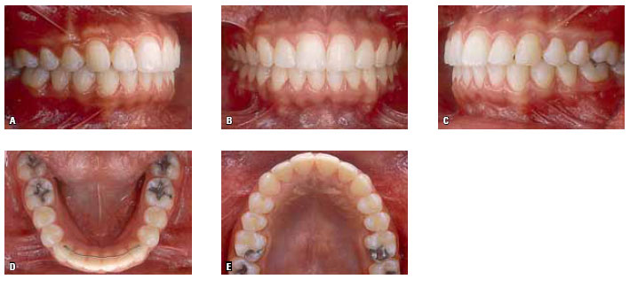 İnsan Diş Kalıbı