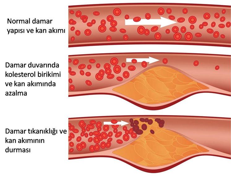 Kolesterol ve damar tıkanıklığı