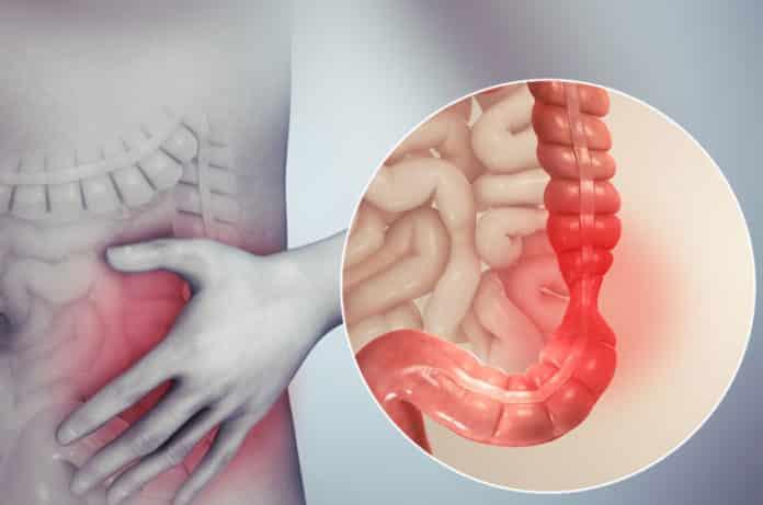Bağırsak Sağlığı İçin Bu Üçlüye Dikkat ! Çölyak, İBS ve Laktoz İntoleransı