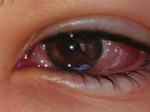 Kolloidal Gümüş Suyu Pembe Göz Hastalığı