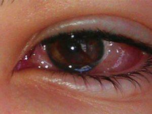 Pembe Göz Hastalığı
