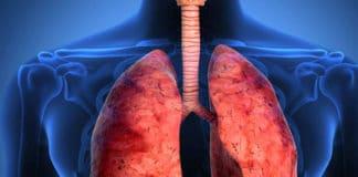 Akciğer Kanseri Tedavi Yöntemleri Nelerdir? Nasıl Teşhis Edilir?
