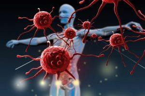 Akciğer kanseri bağışıklık sistemi