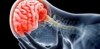 Beyin Tümörü Nedir? Beyin Tümörü Belirtileri ve Nedenleri Nelerdir?