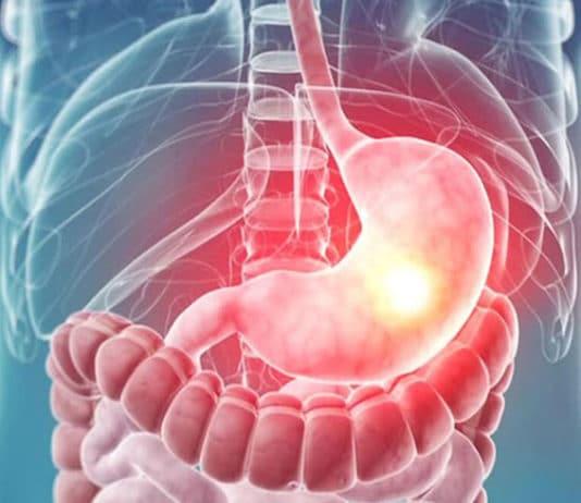 Mide Kanseri Nasıl Teşhis Edilir? Tedavi Yöntemleri Nelerdir?
