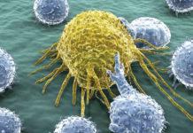 Kanser Nedir? Sık Rastlanan Kanser Türleri Nelerdir?