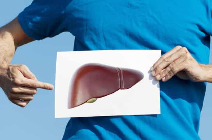 Karaciğer Yağlanması (Hepatik Steatoz) Nedir? Belirtileri ve Tedavisi