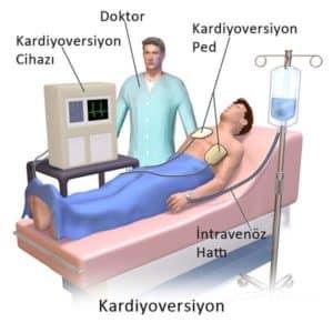 Kalp aritmi Defibrilasyon ve kardiyoversiyon