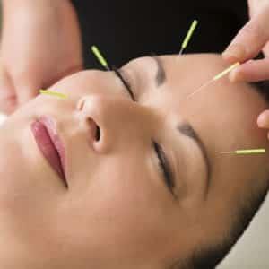 Kalp krizi akupunktur