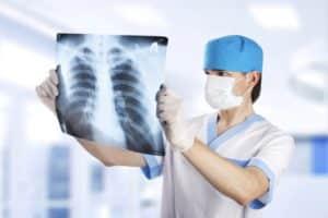 Kalp kapağı hastalığı göğüs röntgeni