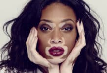 Vitiligo Nedir? Vitiligo Belirtileri ve Tedavi Yöntemleri Nelerdir?