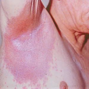 Ters Sedef Hastalığı (Bükülme Sedef Hastalığı veya İntertriginöz Sedef Hastalığı)