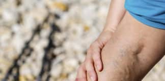 Damar Sertliği Nedir? Arteriyoskleroz / Ateroskleroz Belirtileri ve Nedenleri