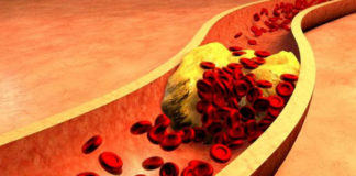 Damar Sertliği Nedir? Arteriyoskleroz / Ateroskleroz Tedavisi ve Teşhisi